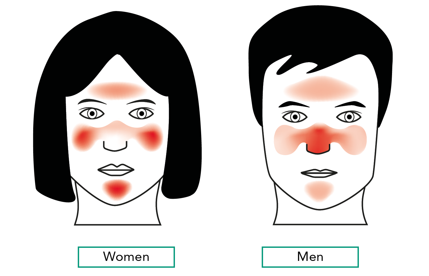 Rosacea Newer Treatments Can Avoid Antibiotics Implementing Guidelines Guidelines In Practice