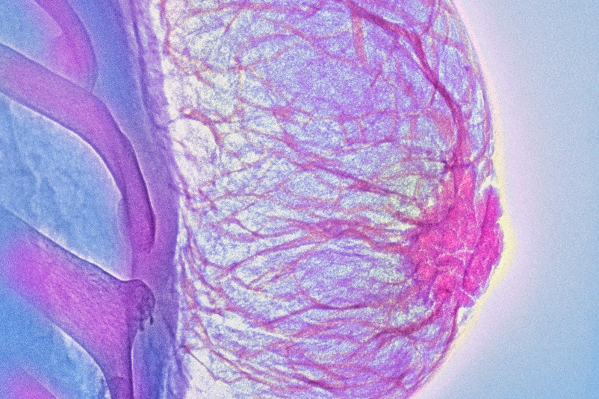 Breast pain: what's the diagnosis? | Differential diagnoses