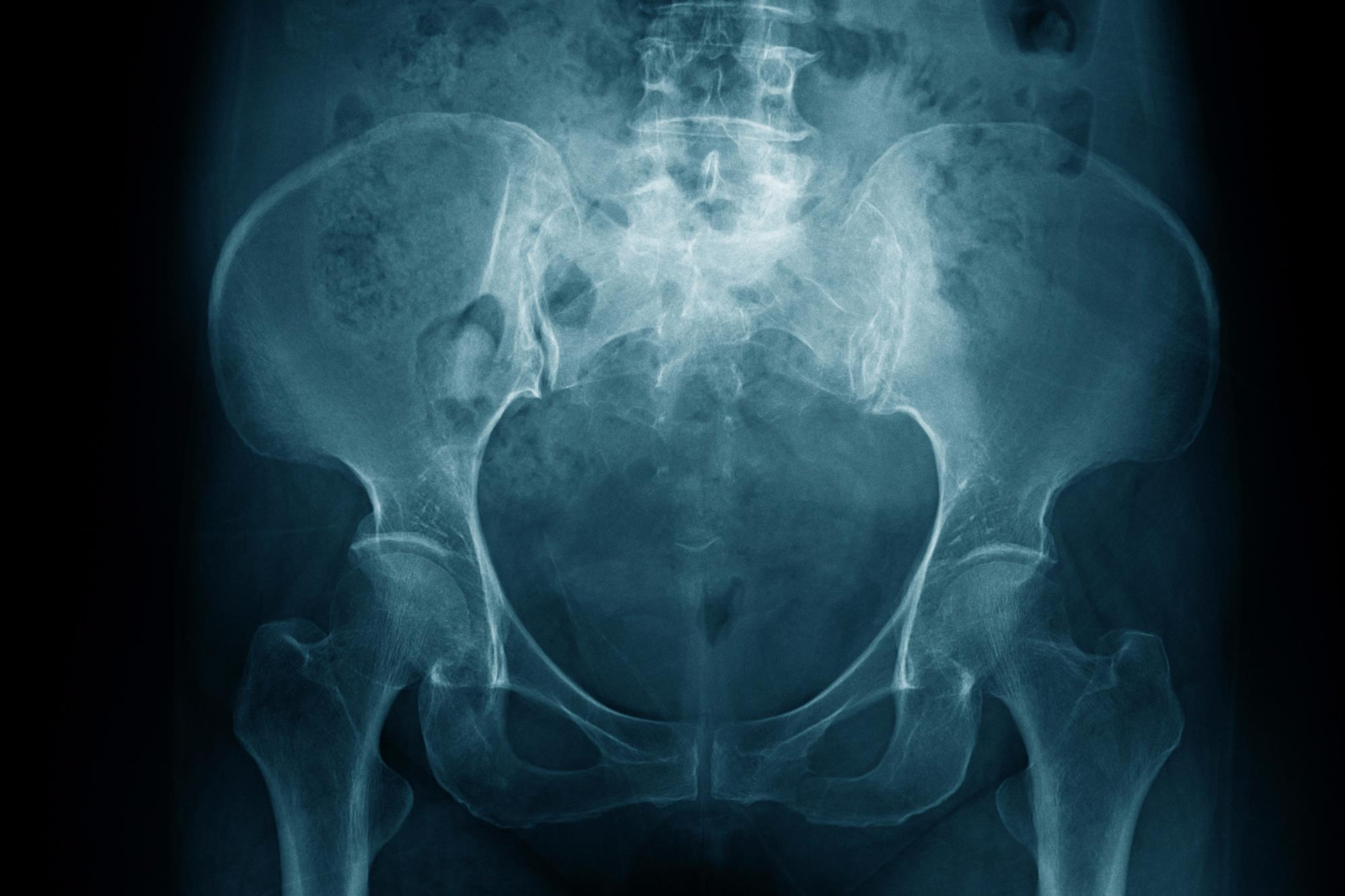 Pelvic pain in women: what's the diagnosis? | Differential