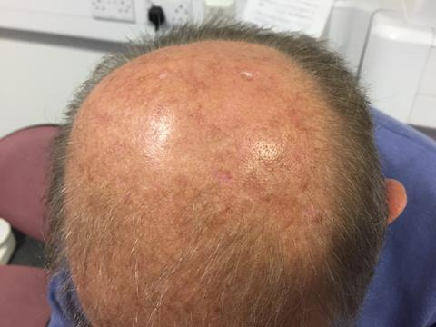 Most actinic keratosis can be managed with topical