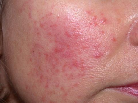 Facial rashes: what's the diagnosis? | Differential