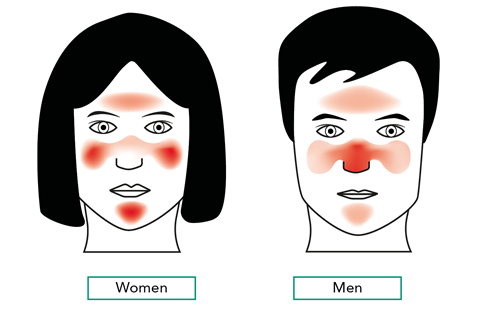 Areas of the face commonly affected by rosacea