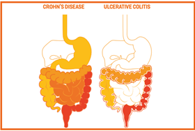 Crohn's and ulcerative colitis_index