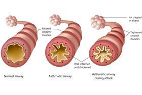 Asthma pathophysiology_AS crop resize